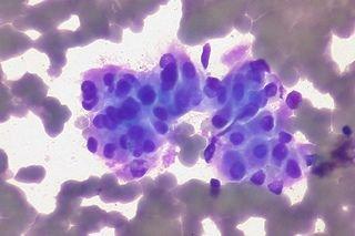Co to są komórki nowotworowe?