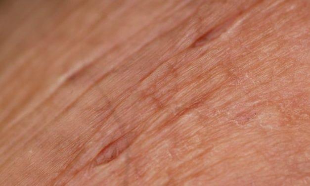 Pielęgnacja skóry w trakcie leczenia onkologicznego