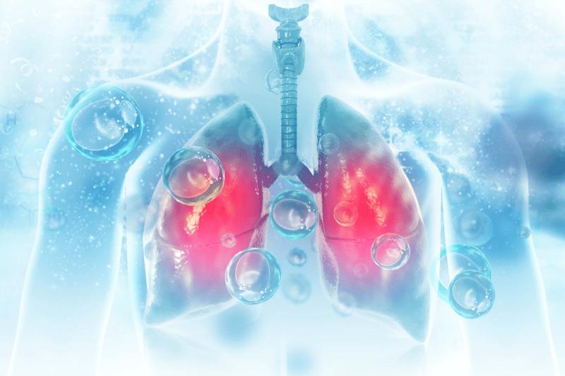 Złośliwy międzybłoniak opłucnej – objawy i leczenie