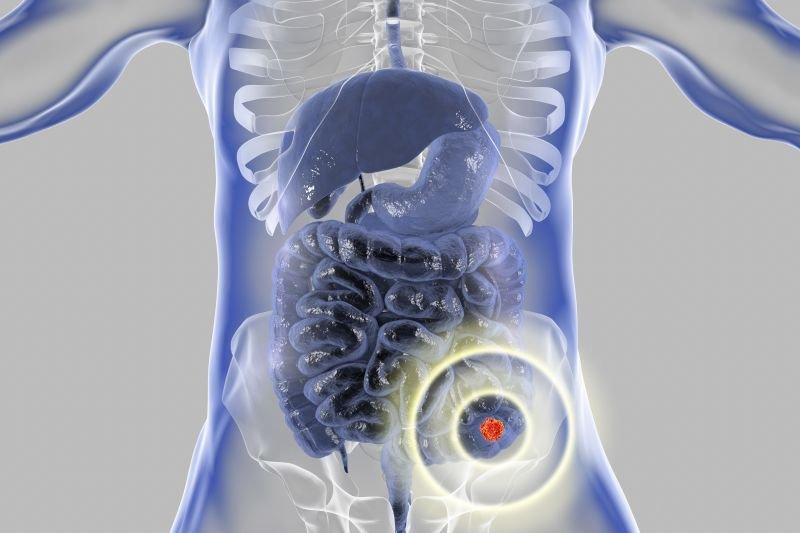 rak jelita cienkiego