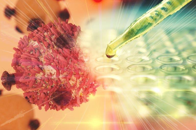 nowotwór pęcherza moczowego leczenie