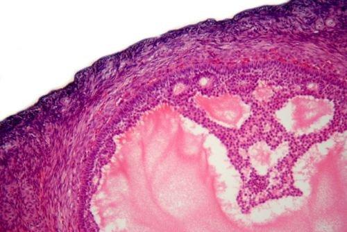 Dziedziczny rak jajnika