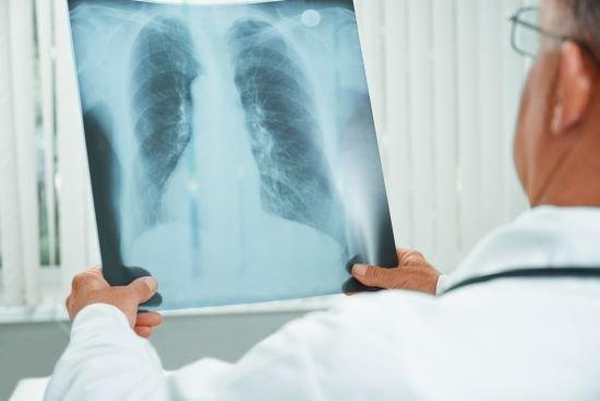 Leczenie personalizowane raka płuca