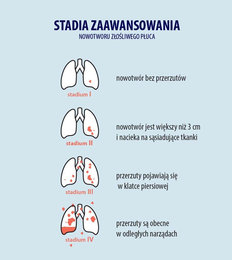 Stadia rozwoju nowotworu płuc