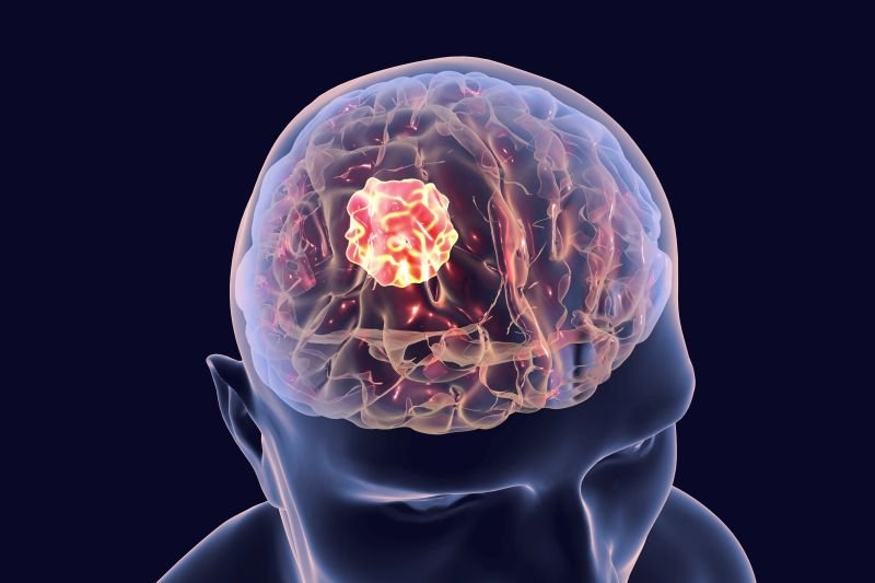guz mózgu rak