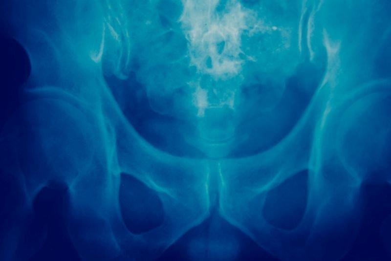 Rak kości i przerzuty do kości – objawy i leczenie