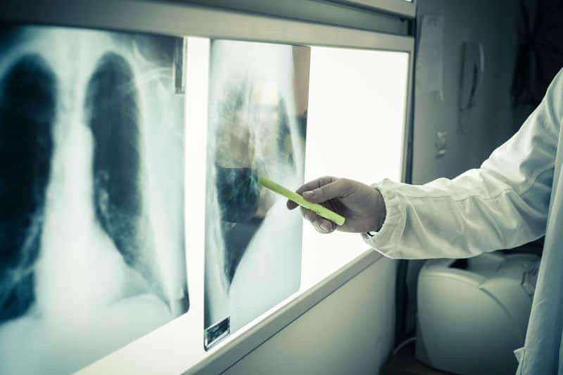Termoablacja guza płuca