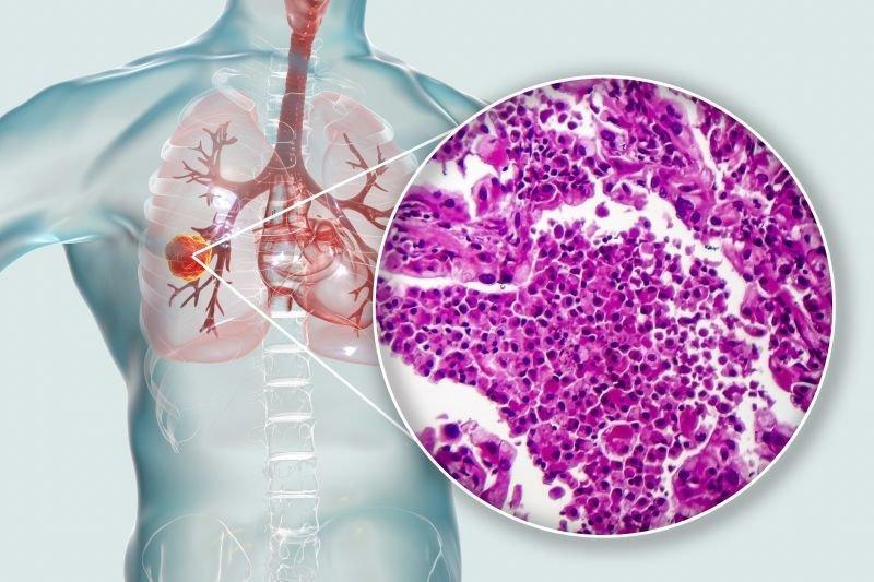leczenie celowane raka