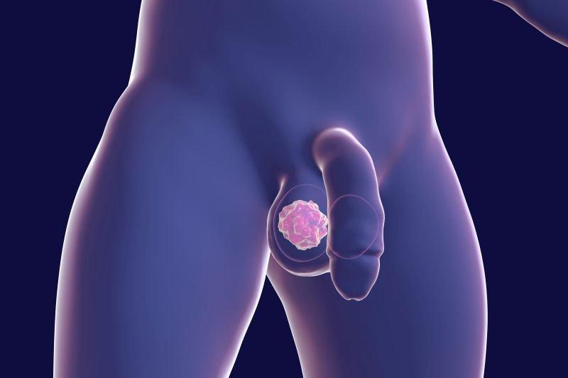 objawy raka jądra