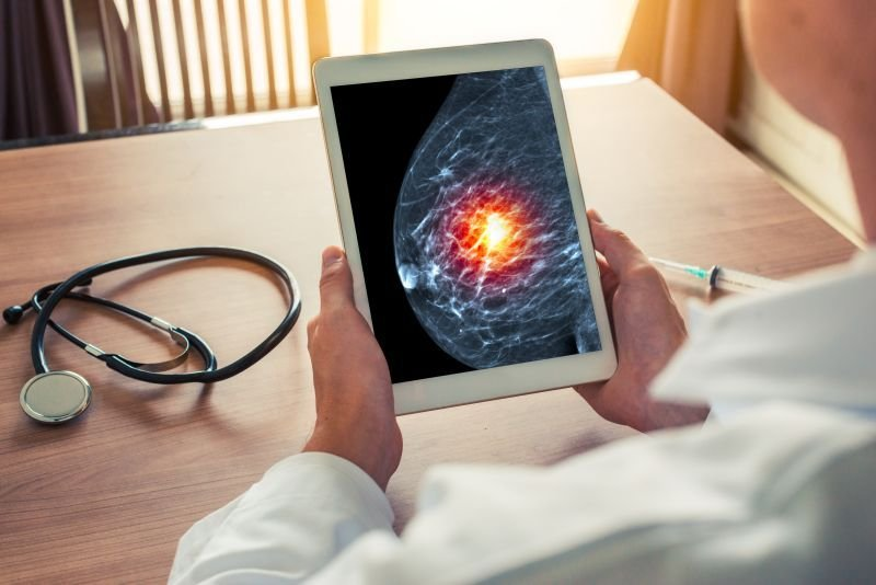 rak piersi objawy