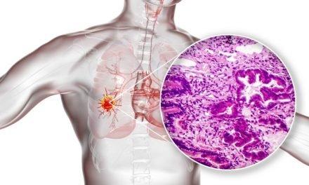 Biobankowanie tkanek nowotworowych do badań genomowych: nowa jakość w onkologii?