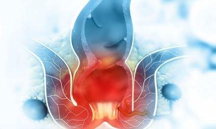 Rak odbytu – objawy, rozpoznanie, leczenie