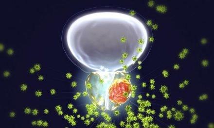 Rak prostaty w roli głównej – diagnostyka i leki nowej generacji