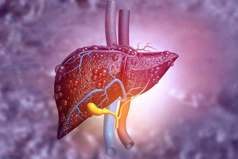 Rak wątrobowokomórkowy w dobie pandemii – relacja z konferencji