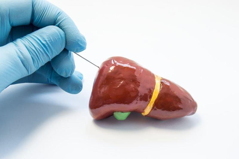 Biopsja w diagnostyce onkologicznej. Rodzaje i przebieg