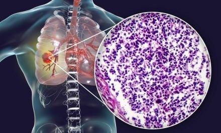 Patomorfologia w raku płuca