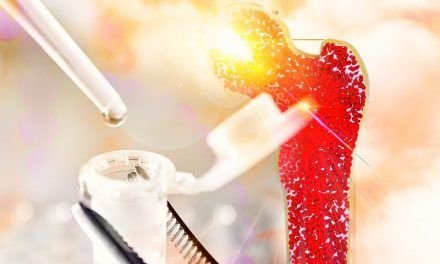 Mielofibroza – nowa opcja leczenia włóknienia szpiku kostnego