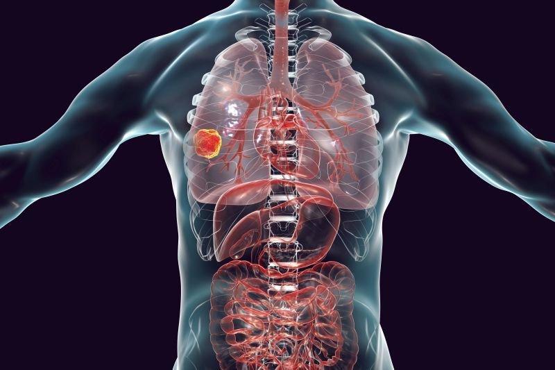 Wizualizacje 3D guzów nowotworowych – technologia zmieniająca oblicze onkologii