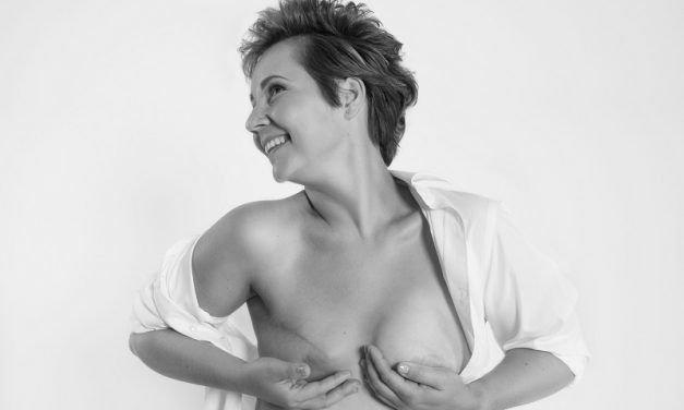 Rak piersi – leczenie chirurgiczne