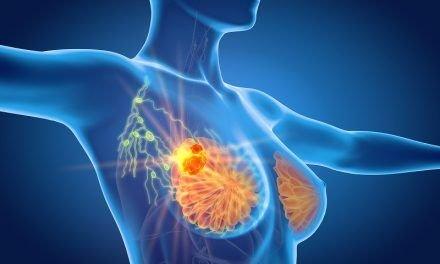Jak wygląda rak piersi? Wizualizacja 3D